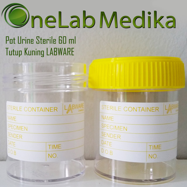 Pot Urine Sterile 60 ml Tutup Kuning LABWARE