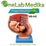 Manikin Panggul Kehamilan 9 Bulan